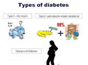 Types of Diabetes | Assignment Writing Services