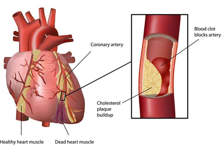 NURSING7125 Cardiovascular Disease Oz Assignment