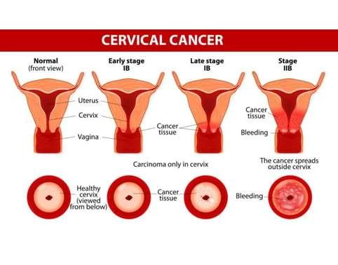 Cervical Cancer Assignment Help