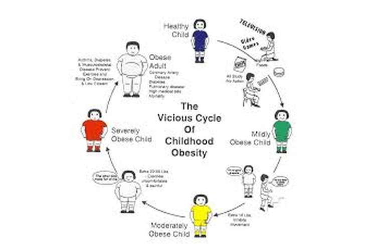 childhood obesity research assignment help