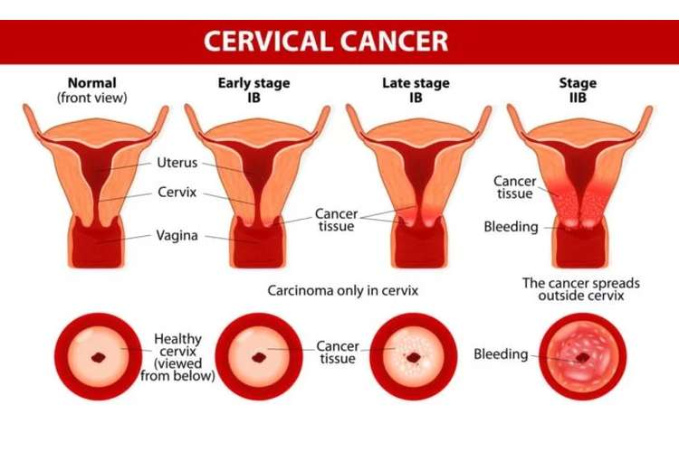 Cervical Cancer Assignment Help